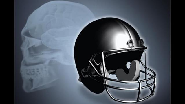 Protecting High School Football Players From Major Head Injuries