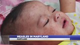 Fourth measles case confirmed in Maryland